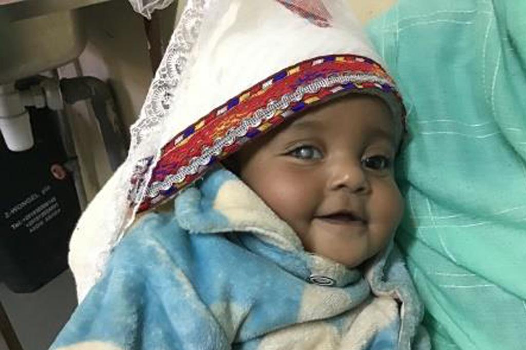 2020 Äthiopien - Baby mit Grauem Star