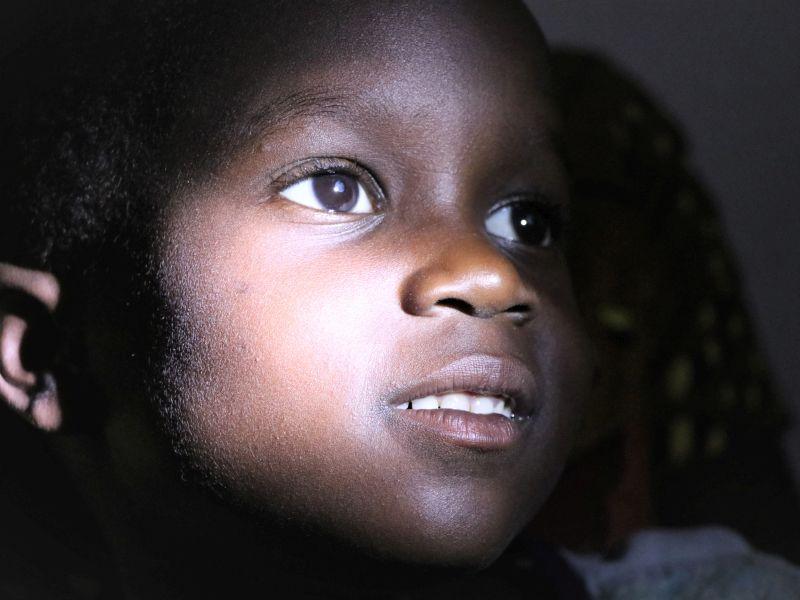 2021 Uganda - Florence hat beidseitigen grauen Star